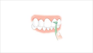 歯間ブラシの種類 L字型