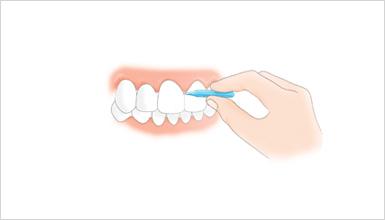 歯間ブラシの種類 I字型