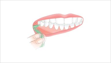 奥歯 歯間ブラシの使い方2